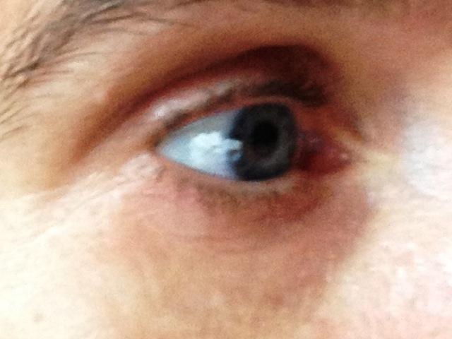 Nach der Anwendung der Augenmaske